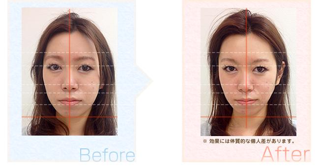 小顔矯正の効果