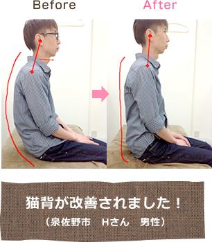 泉佐野市日根野ゆうだい整骨院の施術効果例1