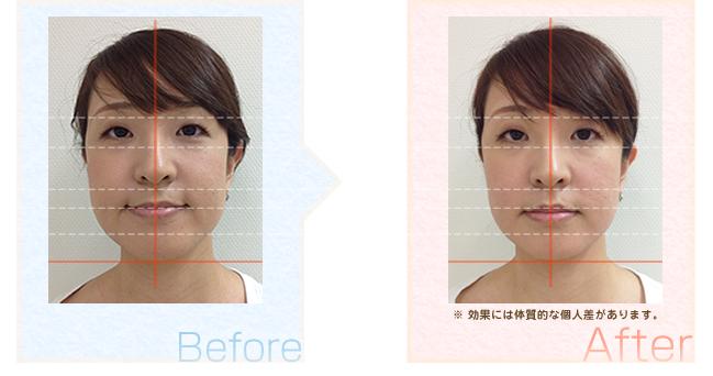 小顔矯正後の効果